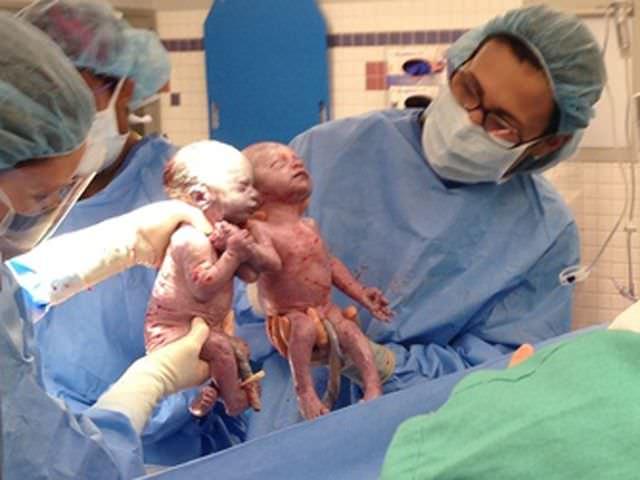 Estas gemelas nacieron cogidas de la mano, ¿cómo estarán 6 meses después?