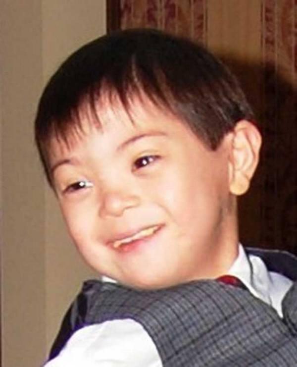 Fotos de personas con Síndrome de Down con sus sonrisas más puras 11
