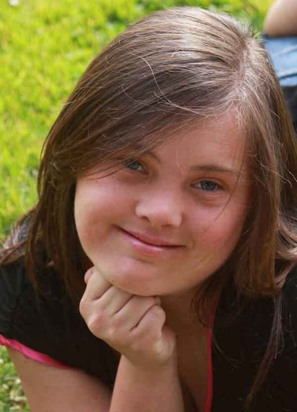 Fotos de personas con Síndrome de Down con sus sonrisas más puras 12