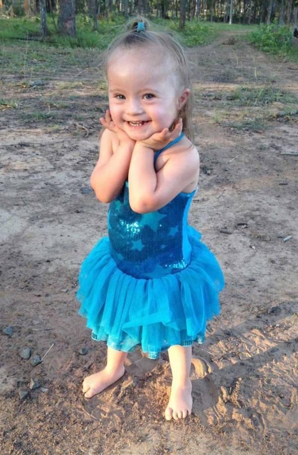 Fotos de personas con Síndrome de Down con sus sonrisas más puras 5